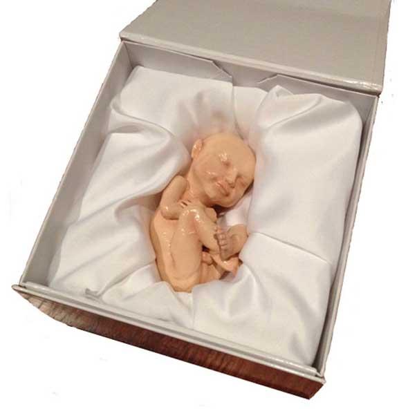 Imprimir réplicas 3D de tu feto a partir de ecografías