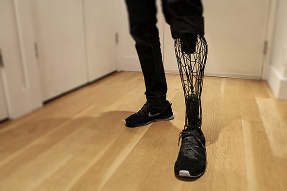 protesis-pierna-impresora-3D_mini